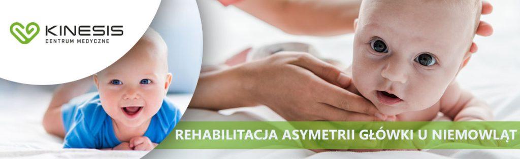 asymetria główki rehabilitacja kamień